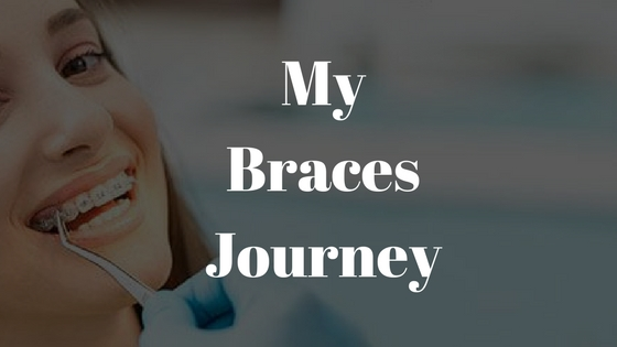 My Braces Journey