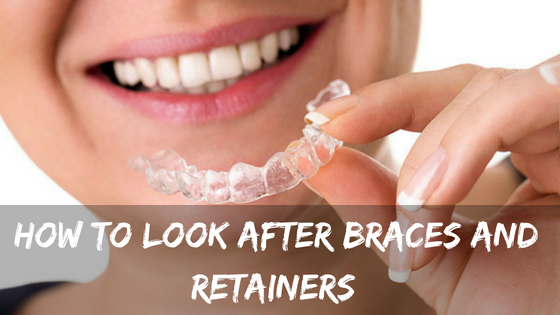 How to look after braces and retainers